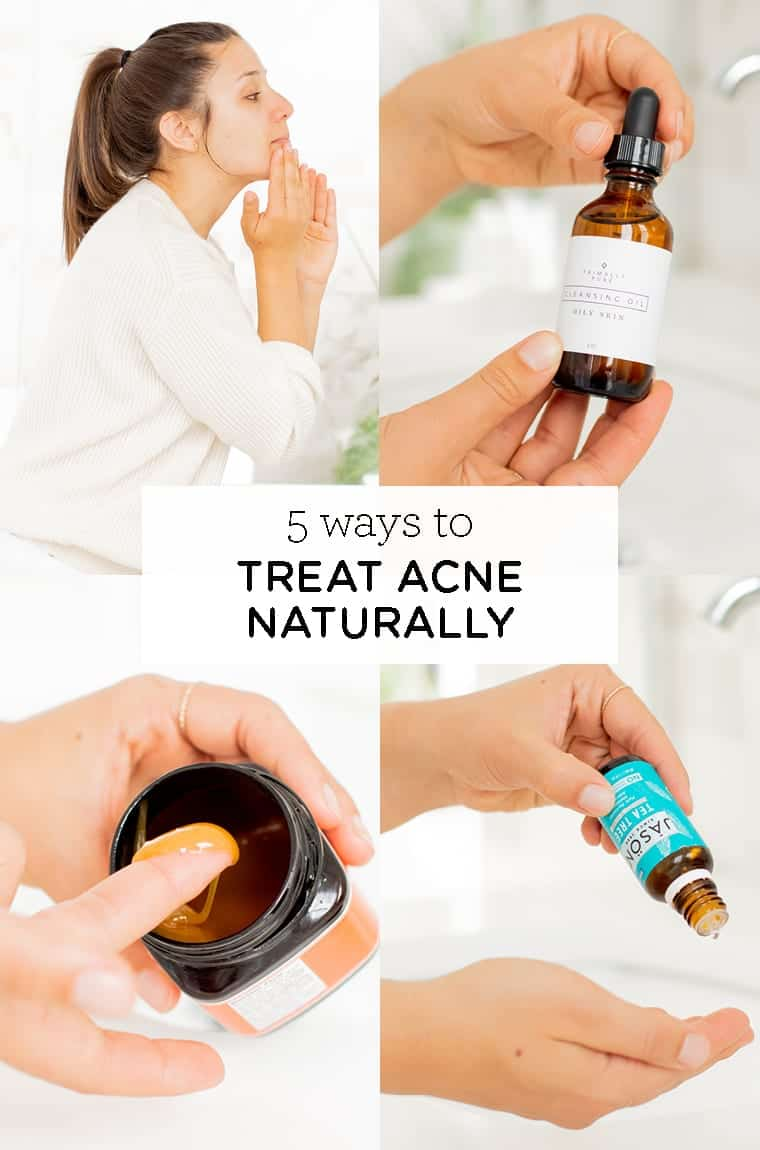 5 natural ways to treat acne